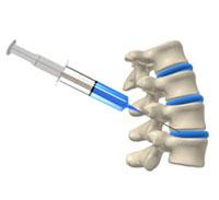 Blokada kręgosłupa