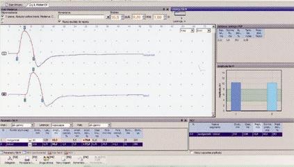 Elektromiografia EMG
