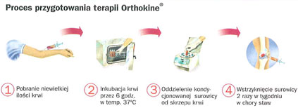 Terapia Orthokine